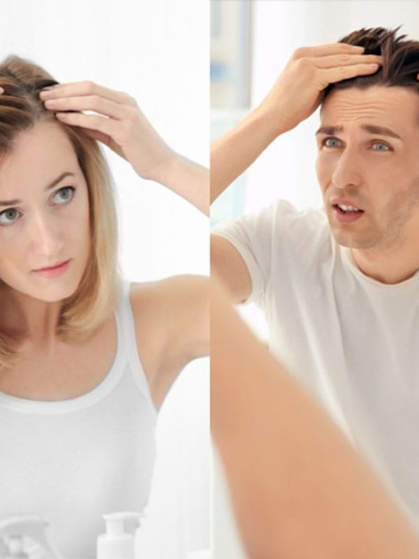 man-woman-experiencing-hair-loss-1